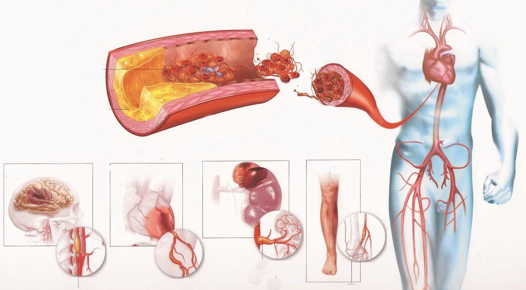 Существует несколько разновидностей кардиосклероза
