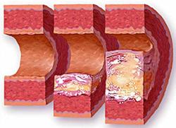 kakie-prichiny-razvitiya-anevrizma-sonnoj-arterii