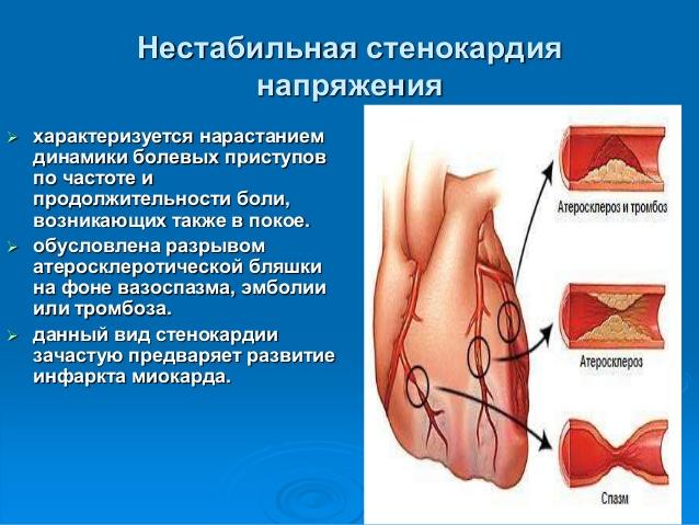Нестабильная стенокардия: что это такое и методы ее лечения