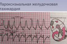 Характеризуется приступом сердцебиения импульсы для возникновения которого ишодят из эктопического очага