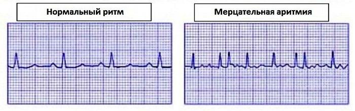 diagnosticheskie-procedury-i-lechenie-mercatelnoj-aritmii