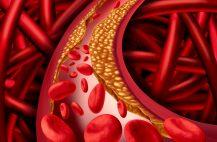 Непосредственной причиной заболевания служит острая транзиторная ишемия миокарда