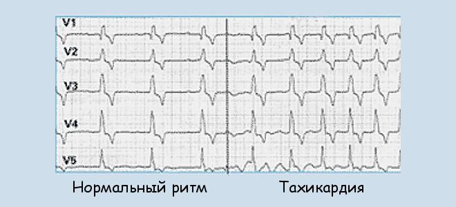 Ощущение человеком своего сердцебиения и усиления сердечных сокращений не всегда свидетельствует о заболевании