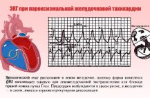 Основным методом подтверждения или опровержения диагноза считается ЭКГ