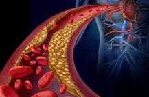 Приступы возникают в состоянии покоя и никак не связаны с физическими нагрузками или повышением артериального давления
