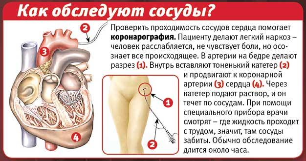 vazospasticheskaya-stenokardiya