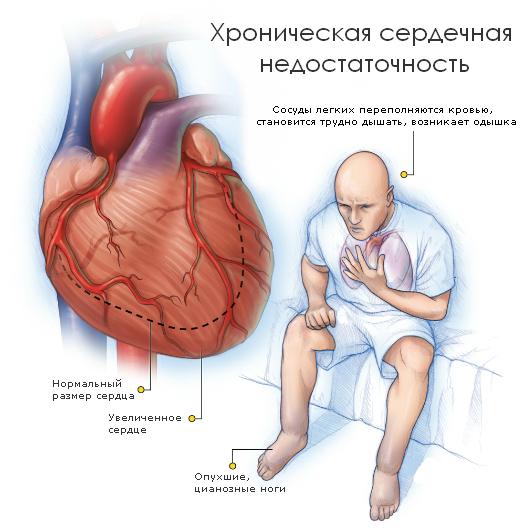 Замедленное кровообращение вызывает хроническое кислородное голодание органов и тканей