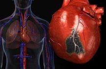 kardioskleroz-postinfarktnyj
