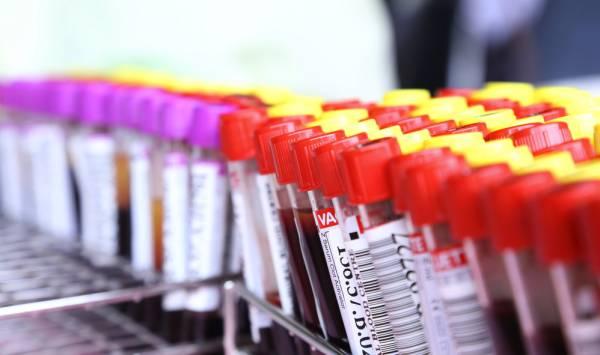 Анализ крови - как одна из мер диагностики
