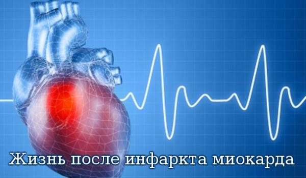 Инфаркт миокарда вполне отчетливо разделяет жизнь больного человека на периоды до инфаркта и после данного приступа