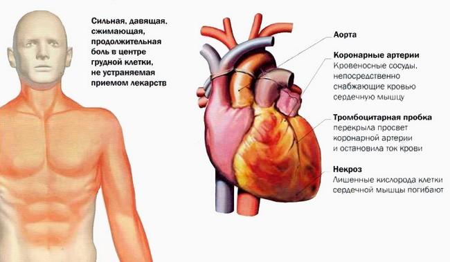 Из-за нарушившегося кровообращения пораженный участок перестаёт выполнять свои функции в результате чего развивается патологическое состояние