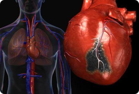 Изменения в сердце обычно развиваются постепенно и сначала обнаруживаются на ЭКГ