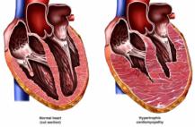 Изучение нарушений диастолической работы сердца является актуальной задачей