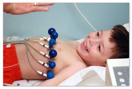 Электрокардиографические симптомы заболевания полиморфны и малоспецифичны