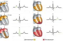 Нарушения реполяризации можно выявить с помощью ЭКГ
