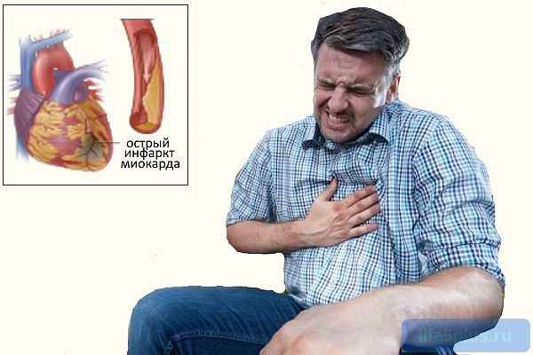 Острая форма характеризуется омертвением участка сердечной мышцы обусловленная проблемами с кровотоком в коронарных сосудах