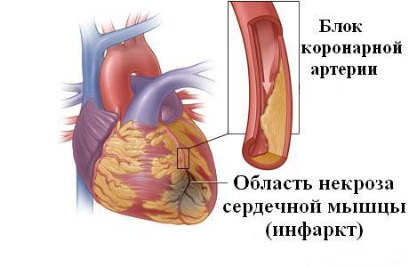 Первичное поражение миокарда происходит во время острейшей стадии