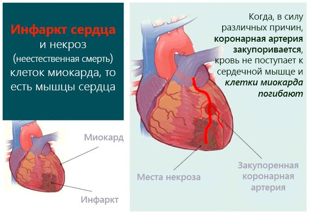 При затянувшемся некрозе более 30 минут развивается ишемия то есть недостаточное кровоснабжения мышцы артериальной кровью