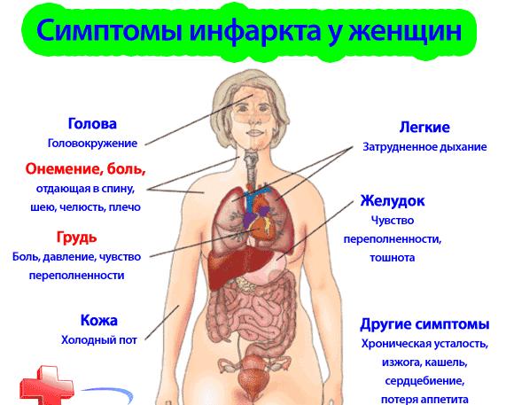 Проявления сердечного приступа вызывают серьезные осложнения