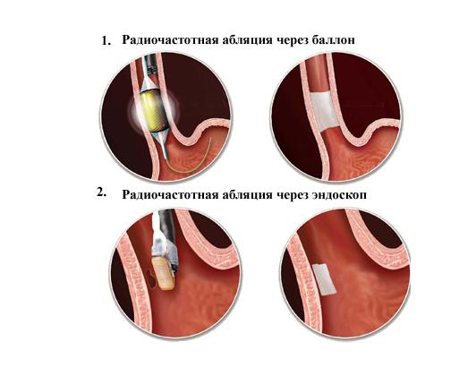 Радиочастотная абляция проводится в операционной под постоянным рентгенологическим контролем и наблюдением состояния пациента