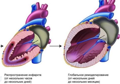 Ремоделирование сердца проишодит под воздействием негативных факторов и заболеваний
