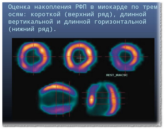 Сцинтиграфия показывает как проиcходит кровоснабжение миокарда