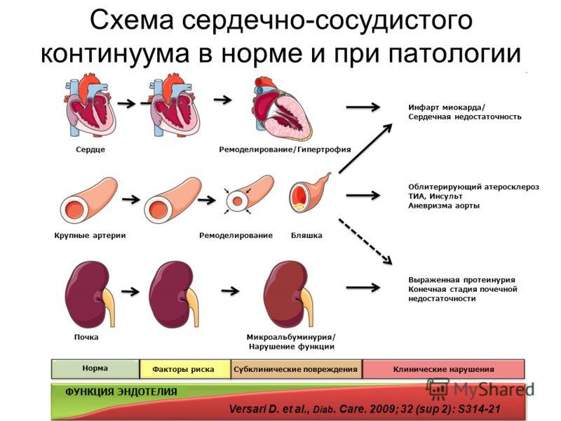 Начинается заболевание с гипертрофии левого желудочка и проявляется повышением толщины его стенки