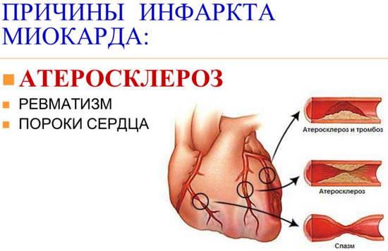 Атеросклеротические уплотнения на внутреннем участке артерии нарушают сердечный кровоток