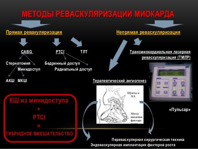 Целью операции является восстановление нормального кровоснабжения миокарда