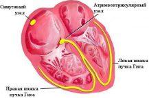 К заболеванию приводит приводит нарушение сердечного ритма, гемодинамики электрических импульсов