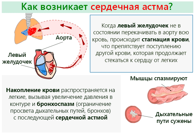 klinika-serdechnoj-astmy-i-oteka-legkih-razvivaetsya-pri