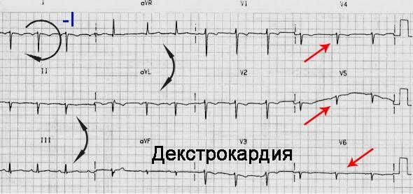 Проявления заболевания на ЭКГ