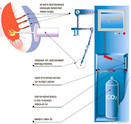 С помощью лазера создаются специальные каналы по которым поступает к сердцу кровь