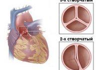 Врожденная аномалия клапана - в норме он имее три створки, которые открываются и закрываются в определенные фазы сердечного цикла