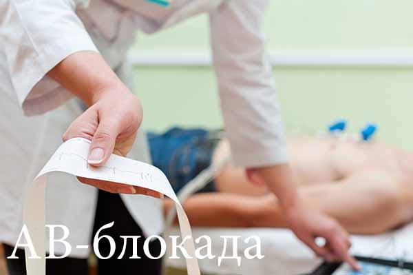 Выявить заболевание можно с помощью ЭКГ и дополнительных методов диагностики