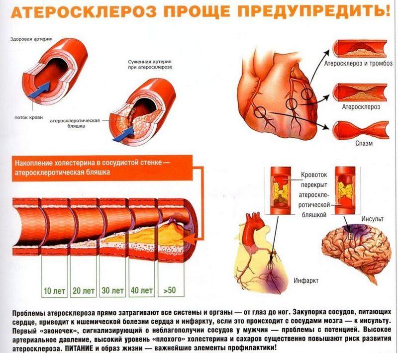 Заболевание характеризуется поражением стенок аорты склеротическими бляшками, которые образуются из жира и холестерина