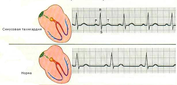 Пример электрокардиограммы работы сердца при отклонении и норме