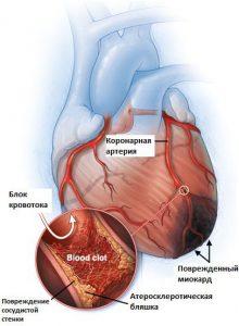 Тромб может стать причиной развития недуга
