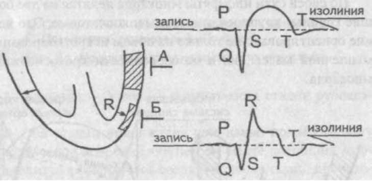 Изменения в сердечной мышце при остром инфаркте миокарда видны на электрокардиограмме