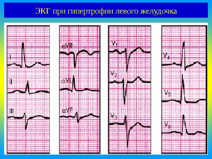 Проявление заболевания на электрокардиограмме