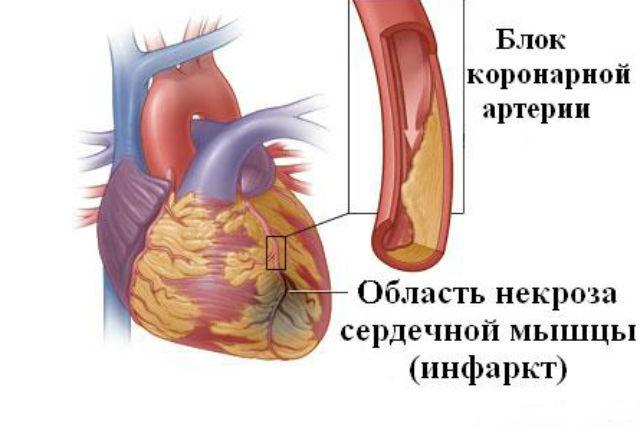 Нарушение кровотока один из факторов возникновения недуга
