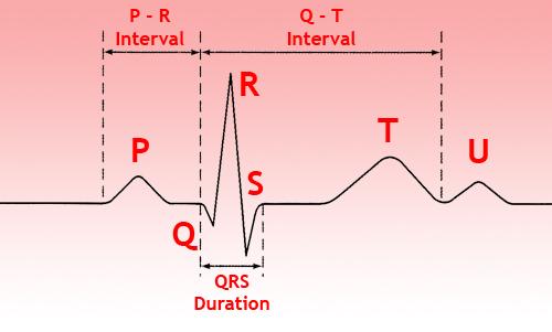 Пример электрокардиограммы, где показатели в норме