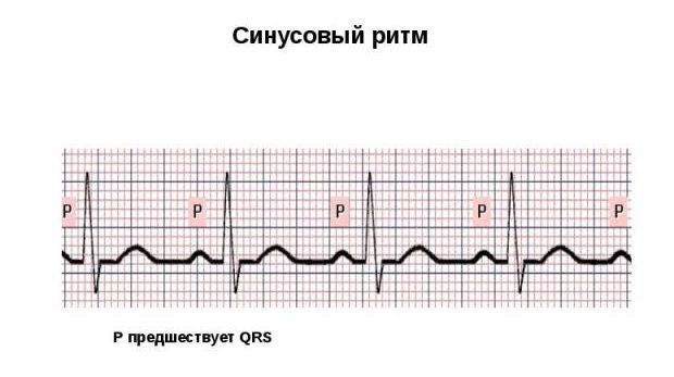 Работа здорового сердца