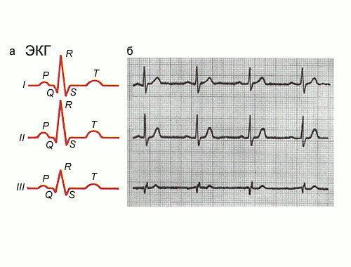 По данным ЭКГ опытный специалист выявит даже малейшее отклонение в работе сердца