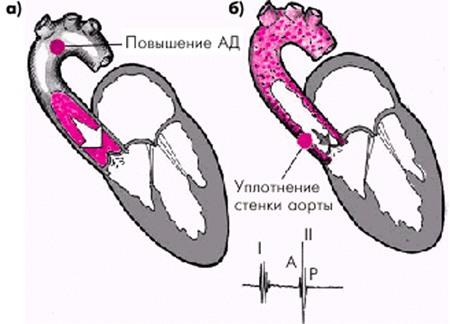 Аорта уплотнена усилен легочный рисунок