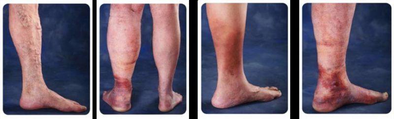 Признаком развития болезни является изменение цвета кожи