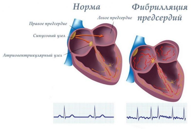 В разрезе видна работа здорового сердца и поврежденного недугом
