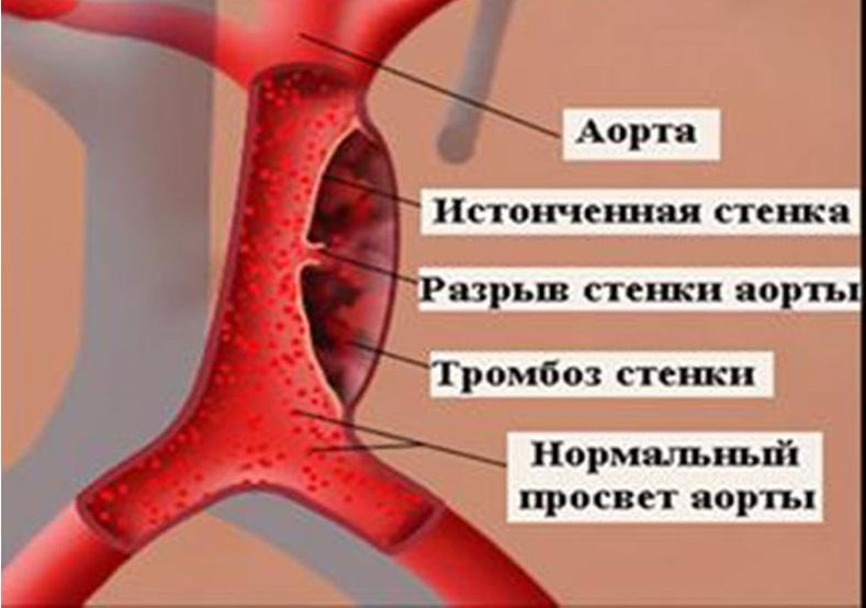 Любые болевые симптомы в области сердца, изменение артериального давления могут являться симптомами опасной болезни