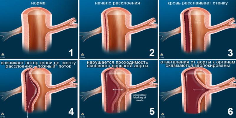 На картинке можно увидеть, как происходит постепенное нарушение кровотока в сосудах и происходит блокировка попадания крови к органам
