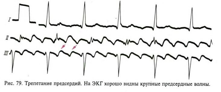 Наглядный пример, как может выглядеть болезнь на кардиограмме